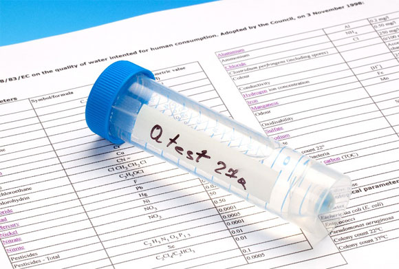 Analysis Report – A Reflection on Quality of your Laboratory Services