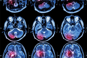 Magnetic Resonance Imaging – a boon for medical diagnosis