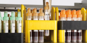 Essentials of Sample Management for Commercial Product Testing Laboratories